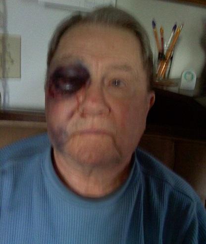 Man Arrested After 'Assault so Foul' on Elderly Man
