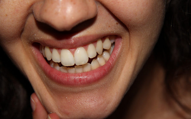 Health Dept.: Fluoride is Your Kid's Friend to Fight Tooth Decay